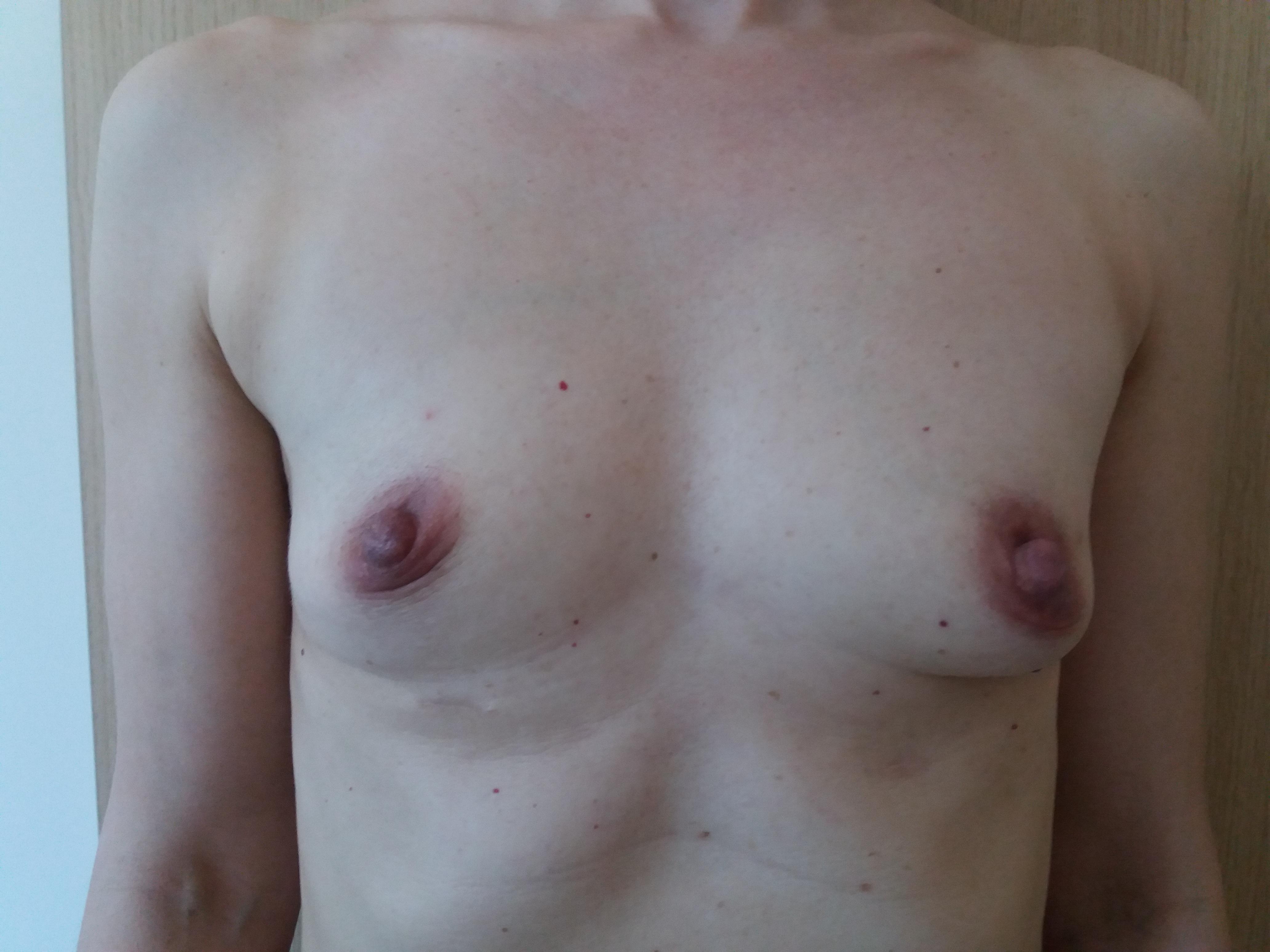 powiększenie piersi implantami silikonowymi chirurg plastyczny kraków dr Jędrys przed (1)