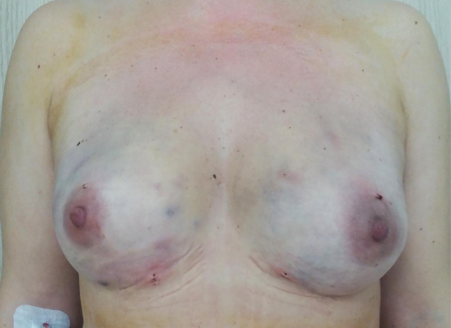 przeszczep-tłuszczu-do-piersi-PO-1