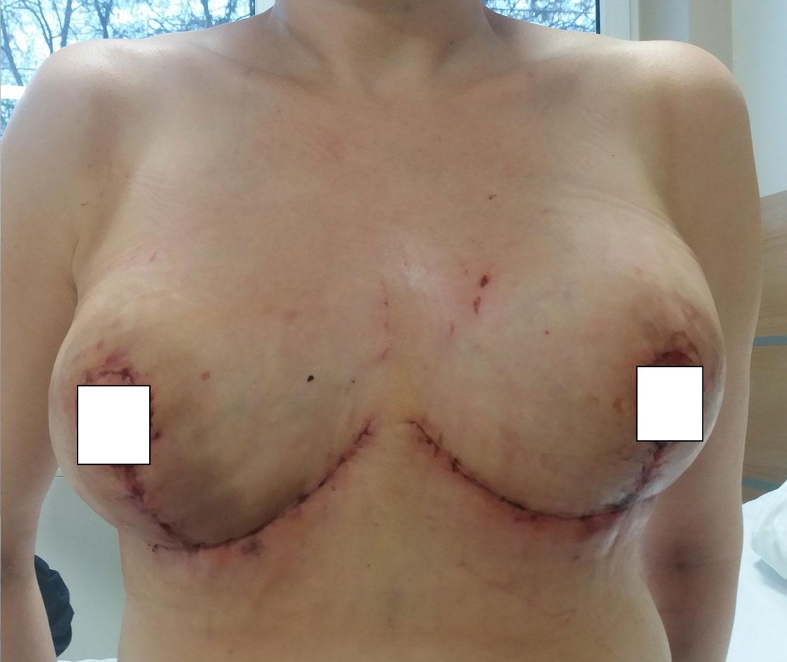 redukcja-piersi-po-1