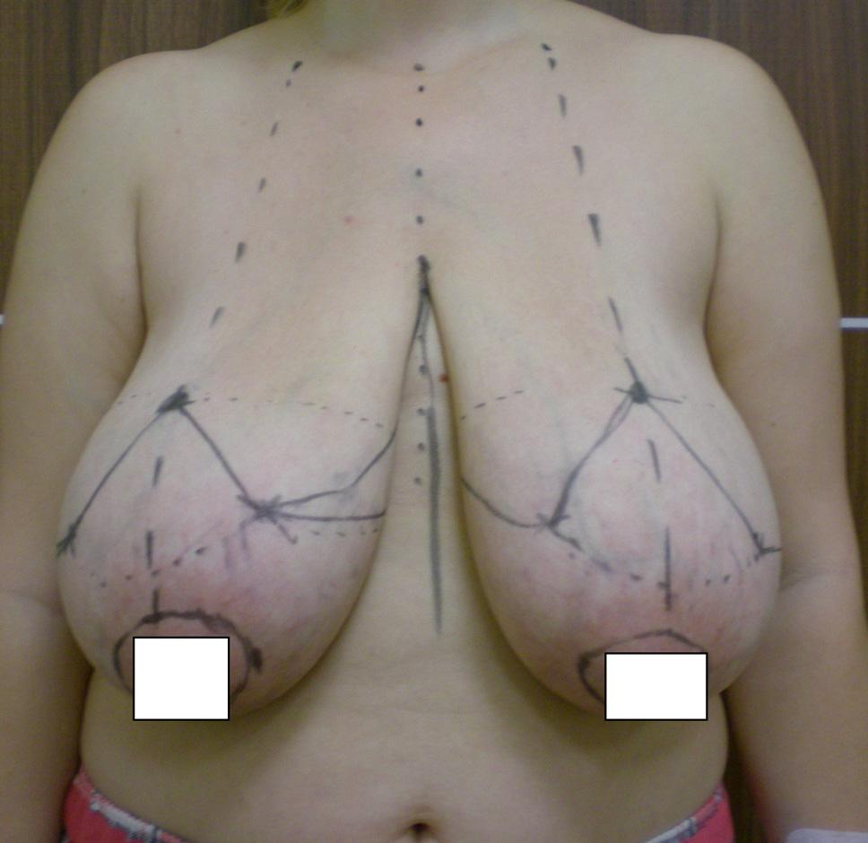 redukcja-piersi-przed-3